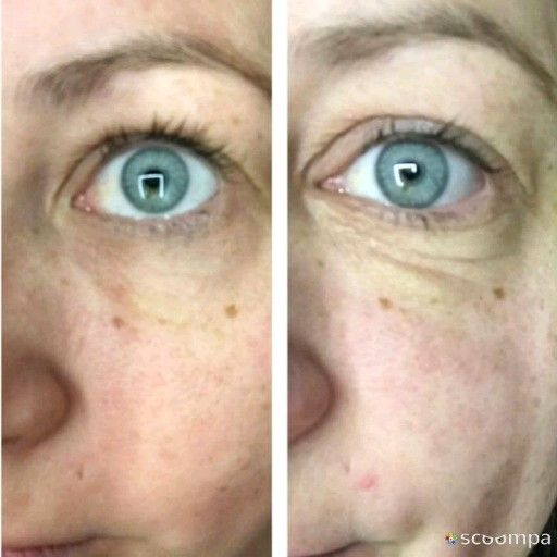 coconut oil under eyes review