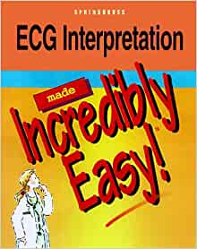 ecg interpretation made incredibly easy review