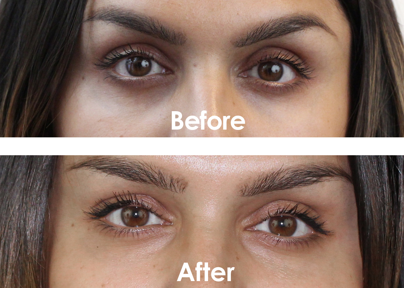 almond oil for under eye circles reviews