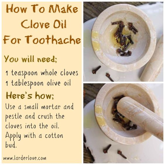 clove oil for toothache reviews